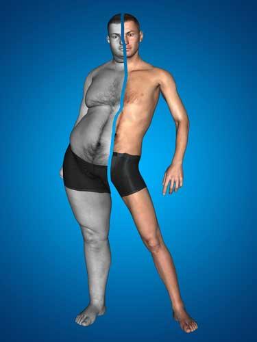 lichamelijke klachten door overgewicht
